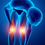The Bone-y Basics of Arthritis